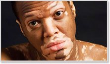 Fight Vitiligo